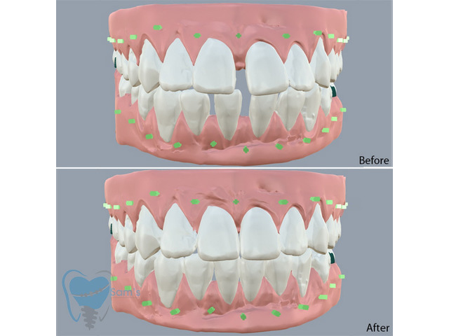 Invisible Clear Aligners for Misaligned Teeth in Tamilnadu - 1/9
