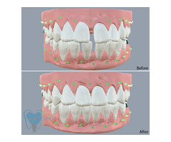 Invisible Clear Aligners for Misaligned Teeth in Tamilnadu - Image 1/9
