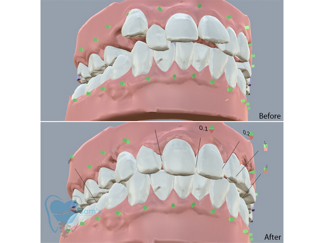 Invisible Clear Aligners for Misaligned Teeth in Tamilnadu - 2/9