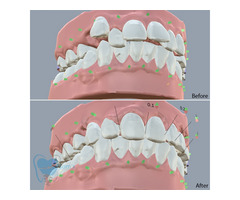 Invisible Clear Aligners for Misaligned Teeth in Tamilnadu - Image 2/9