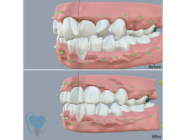 Invisible Clear Aligners for Misaligned Teeth in Tamilnadu - 3/9