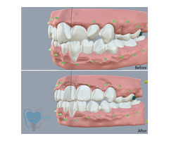 Invisible Clear Aligners for Misaligned Teeth in Tamilnadu - Image 3/9