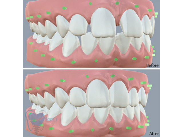 Invisible Clear Aligners for Misaligned Teeth in Tamilnadu - 5/9