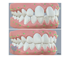 Invisible Clear Aligners for Misaligned Teeth in Tamilnadu - Image 5/9