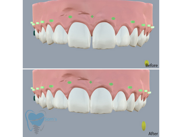 Invisible Clear Aligners for Misaligned Teeth in Tamilnadu - 6/9