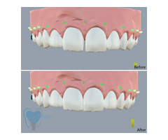 Invisible Clear Aligners for Misaligned Teeth in Tamilnadu - Image 6/9