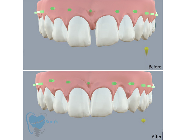 Invisible Clear Aligners for Misaligned Teeth in Tamilnadu - 7/9