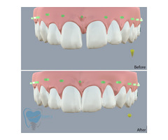 Invisible Clear Aligners for Misaligned Teeth in Tamilnadu - Image 7/9
