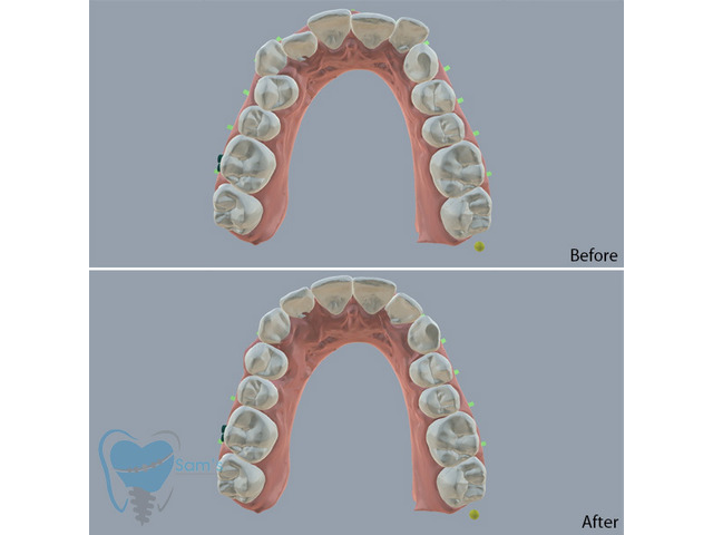Invisible Clear Aligners for Misaligned Teeth in Tamilnadu - 8/9