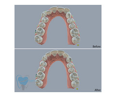 Invisible Clear Aligners for Misaligned Teeth in Tamilnadu - Image 8/9