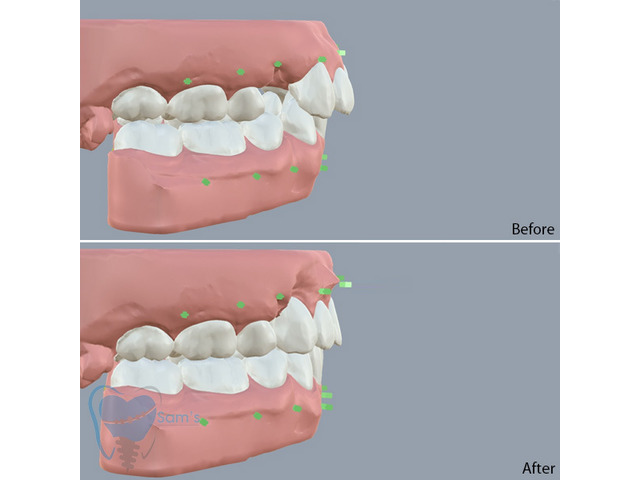 Invisible Clear Aligners for Misaligned Teeth in Tamilnadu - 9/9