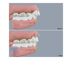 Invisible Clear Aligners for Misaligned Teeth in Tamilnadu - Image 9/9